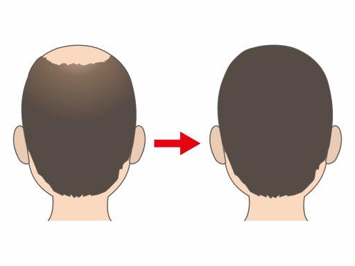 【薄毛の予防・改善!】効果的に薄毛を改善する頭皮マッサージのやり方とは